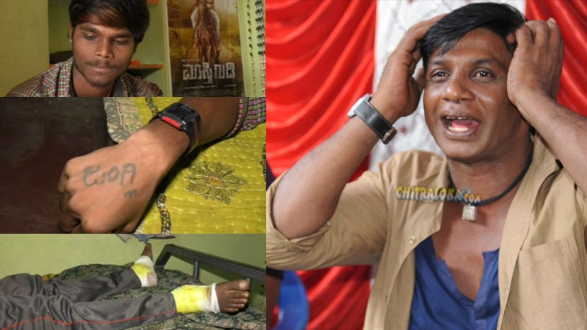 duniya vijay fan looses his leg